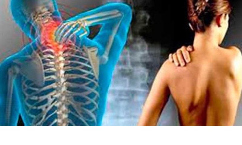 8 Exerciții care te ajută să previi sau să ameliorezi osteocondroza cervicală!